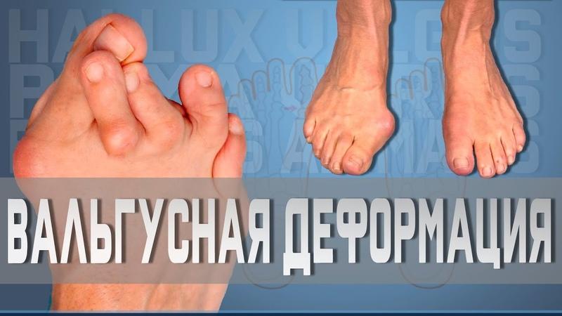 Вальгусная деформация большого пальца Доктор Демченко