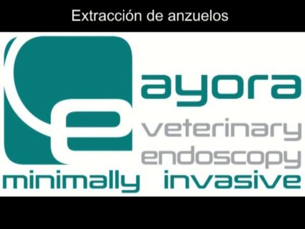 Эндоскопическое удаление крючка Extracción endoscópica de anzuelo Técnica rígida