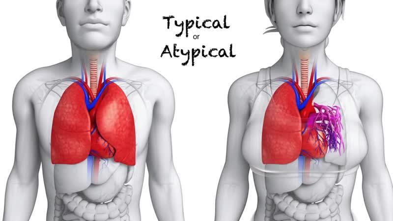 Why Medicine Often Has Dangerous Side Effects for Women Alyson McGregor TED Talks