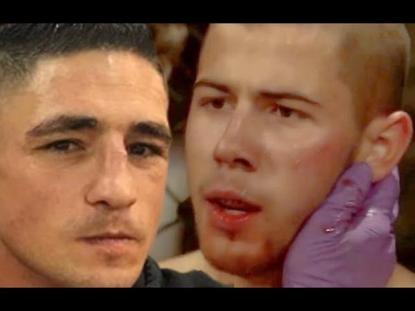 Diego Sanchez punched Nick Jonas On Set Of Kingdom And Gave Him Cauliflower Ear